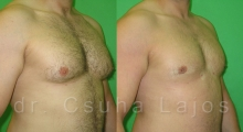 651_gynecomastia_02