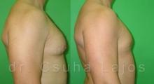 651_gynecomastia_03
