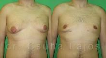 654_gynecomastia_01