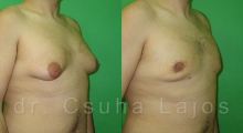 654_gynecomastia_02
