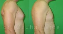 659_gynecomastia_03