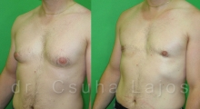 661_gynecomastia_02
