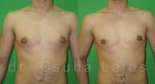 668_gynecomastia_01