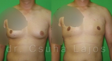 673_gynecomastia_01