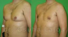 674_gynecomastia_02