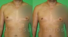 681_gynecomastia_01