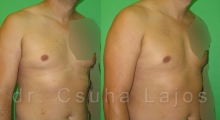 681_gynecomastia_02