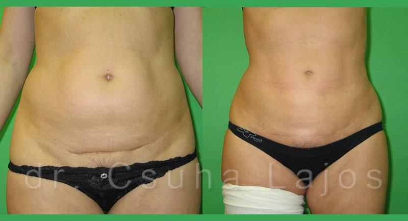 3001. zsírleszívás 1 év has,csípő egyidejű hegkorrekcióval
