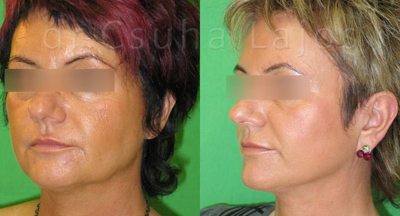 377. arcplasztika 4 év