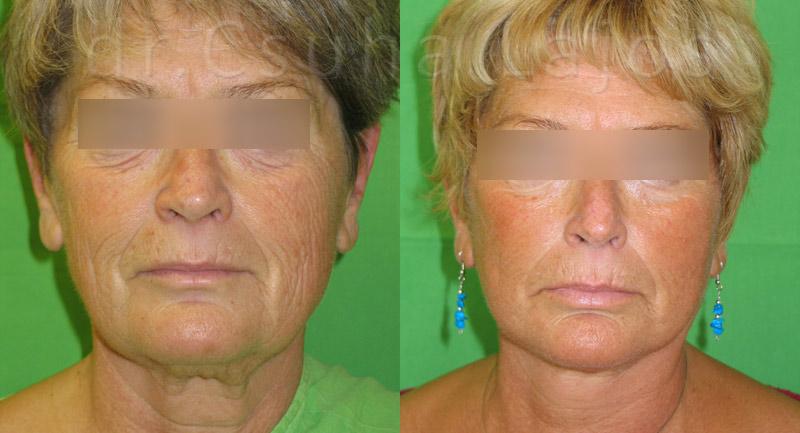 380. arcplasztika 1 év