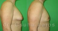 654_gynecomastia_03