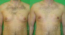 663_gynecomastia_01
