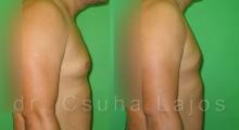 681_gynecomastia_03