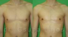 684_gynecomastia_01