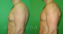 686_gynecomastia_03