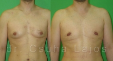687_gynecomastia_01
